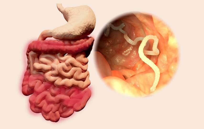 Les moyens médicamentaires des helminthes et les parasites